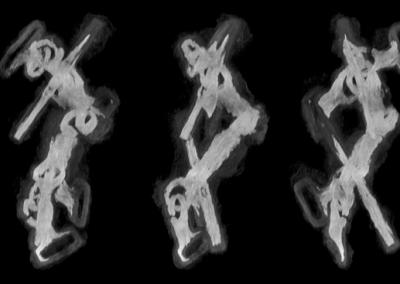 reconstruction en MIP 3D  du mors de cheval