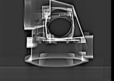 radiographie profil
